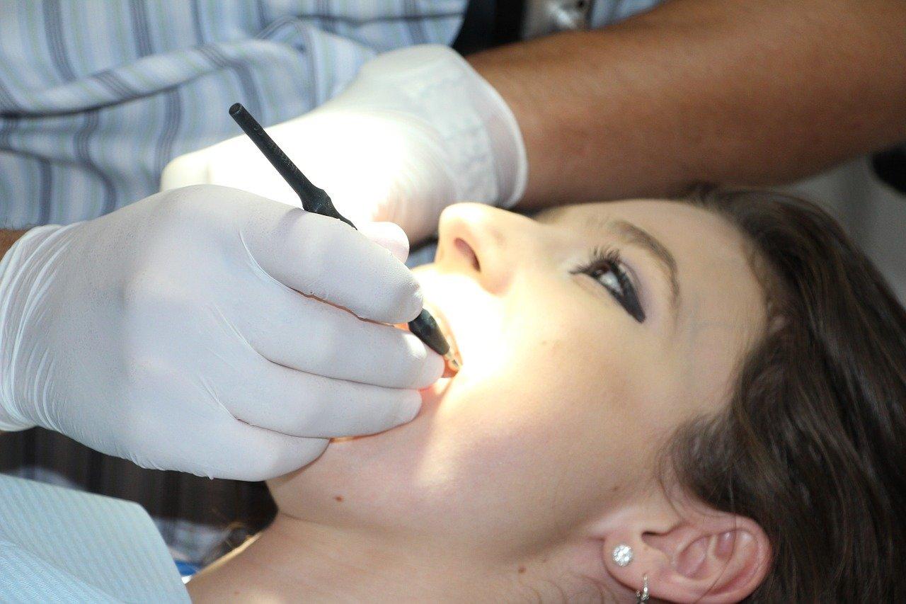 歯科検診 婦人